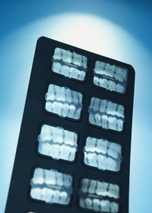 Dental X-Rays Myrtle Beach SC