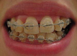 Orthodontics Myrtle Beach SC