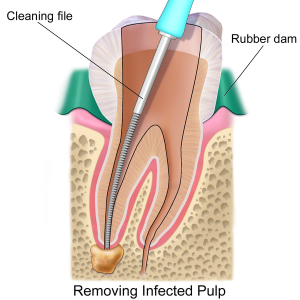 Root Canal Treatment in Myrtle Beach CA