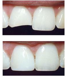 Dental Bonding in Myrtle Beach SC