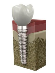 Dental Implants in Myrtle Beach SC